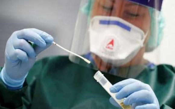 Imagen de médico con muestra de PCR